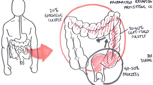مرض التهاب الأمعاء