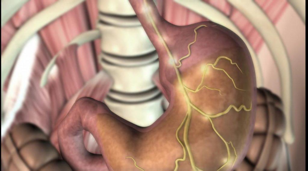 علامات التحذير السبعة من سرطان المعدة