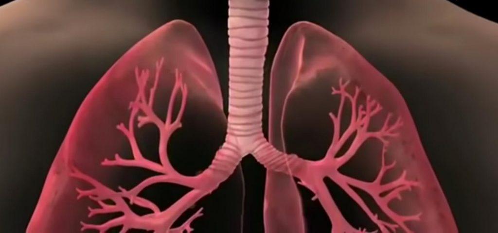 العلامات المبكره لسرطان الرئة