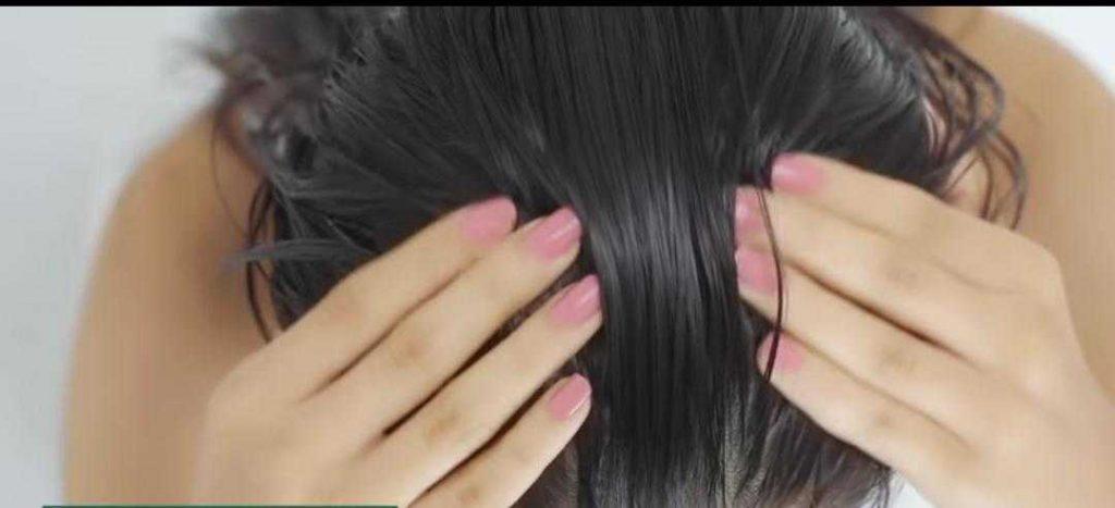 خيارات للصلع النمطي الانثوي وتساقط الشعر الاخرى