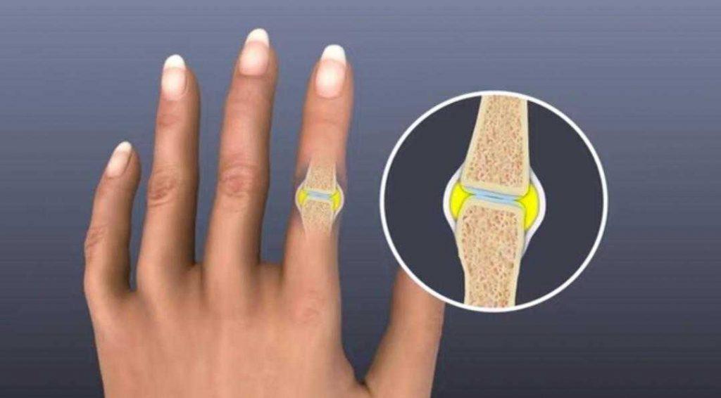 7 علامات تدل على ان لديك التهاب في المفاصل