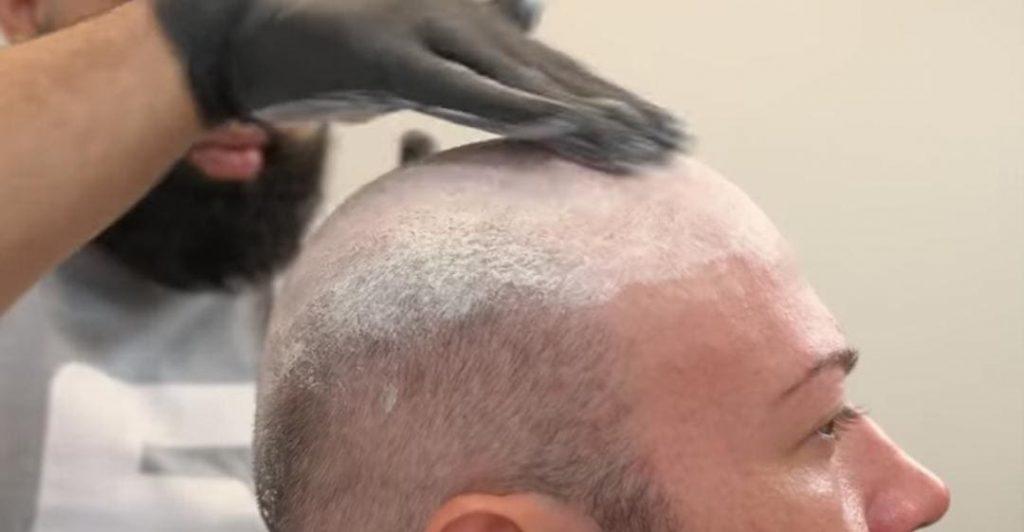 الدليل الكامل لزرع الشعر (والبدائل)