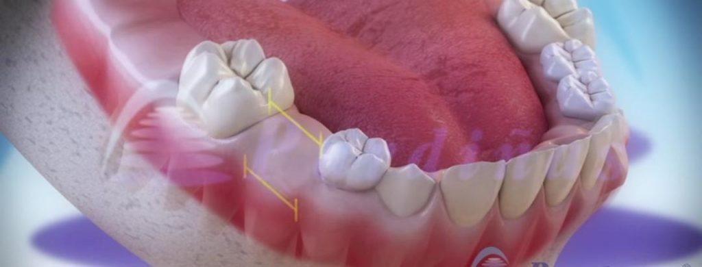 7 طرق طبيعية لتبييض اسنانك في المنزل