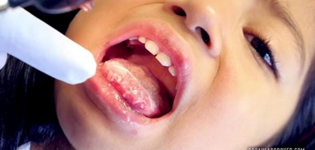 التهاب الفم