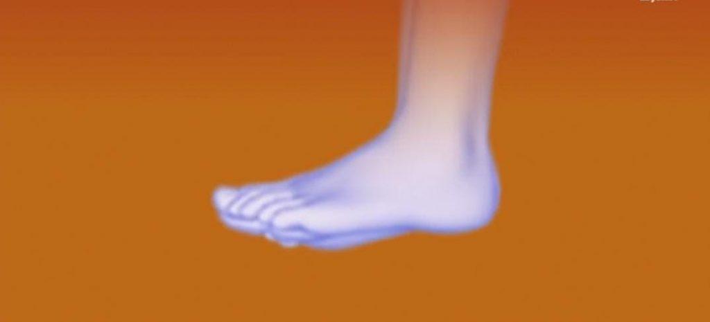 اسباب الم القدم